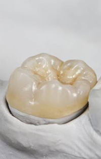 Model tooth with dental crown restoration