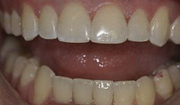 Gap between front teeth filled with composite resin