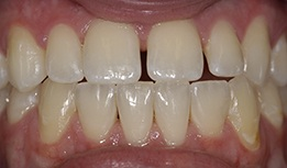 Front teeth with large gap between