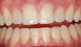 Gap filled with composite resin