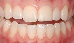 Stain on front tooth concealed with composite