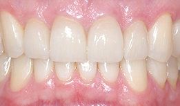 Two front teeth replacement cosmetic crowns