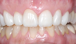 Dental crown repaired upper and lower front teeth