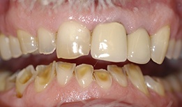 Stained and worn teeth