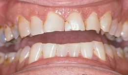 Yellowed and broken teeth
