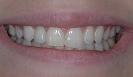 Implant retained crown tooth replacement