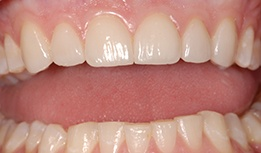Teeth repaired with porcelain veneers