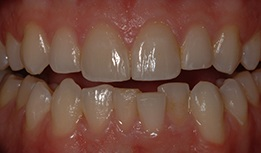 Veneers used to create uniform smile line