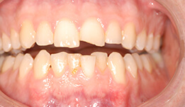 Teeth that are unevenly sized and shaped