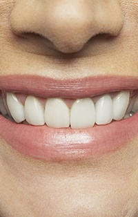 Closeup of smile following dental implant restoration