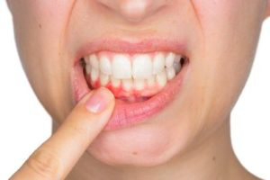 Woman pointing at her painful gums