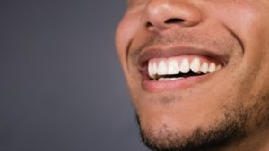 person smiling and showing their gums